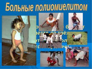 Чаще полиомиелитом болеют дети в возрасте до трёх лет. У 50 –70% от числа бол