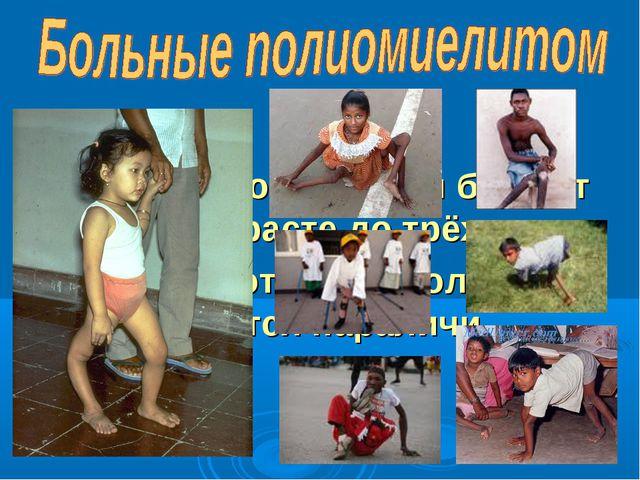 Чаще полиомиелитом болеют дети в возрасте до трёх лет. У 50 –70% от числа бол...