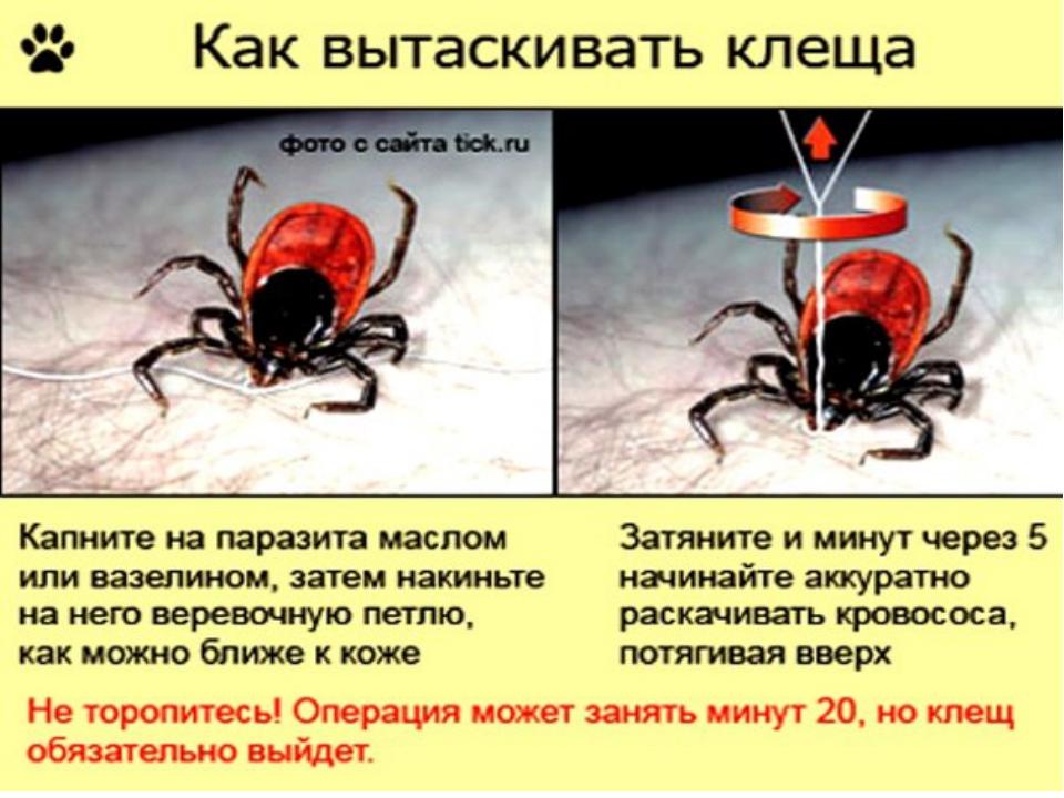 Как самим достать клеща - Bonbouton.ru