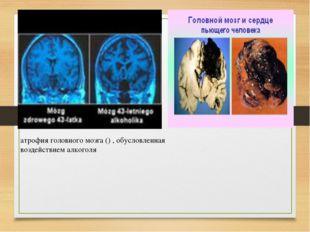 атрофия головного мозга () , обусловленная воздействием алкоголя