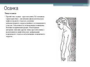 Осанка Характеристики нормальной осанки: Голова находится в прямом положении.