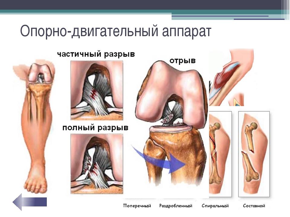 Опорно-двигательный аппарат Спортивные травмы: Растяжения мышц Повреждения го...