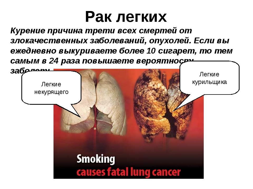 Рак легких Курение причина трети всех смертей от злокачественных заболеваний,...