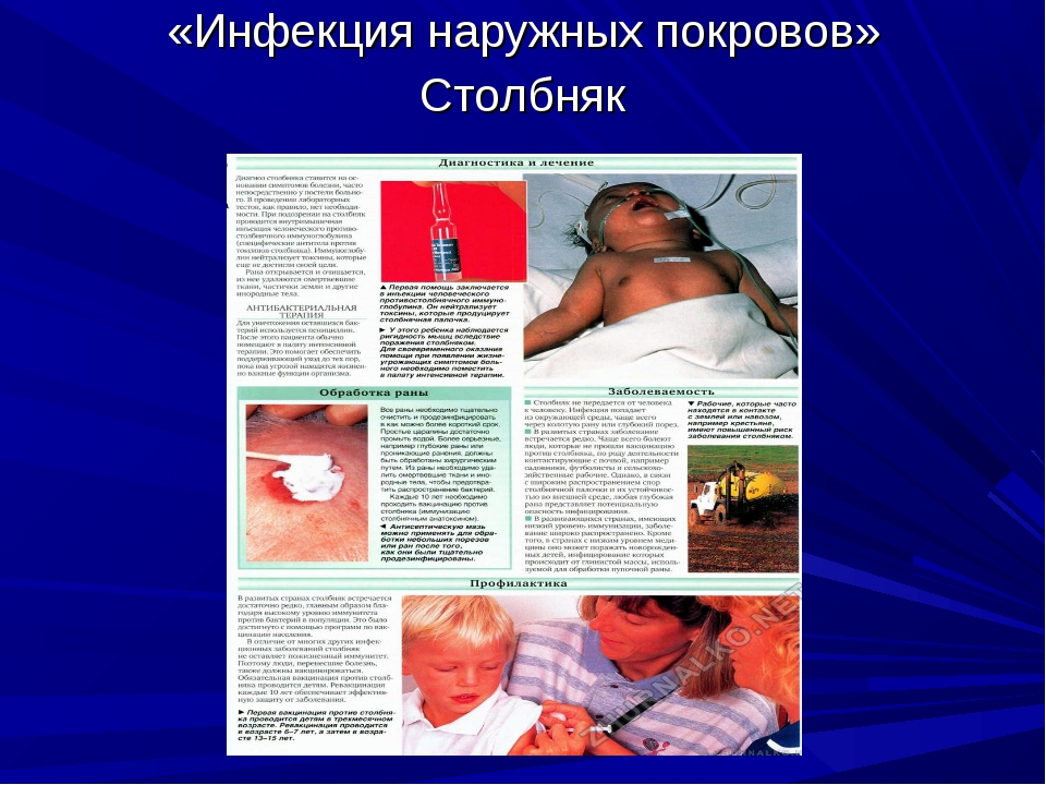 «Инфекция наружных покровов» Столбняк