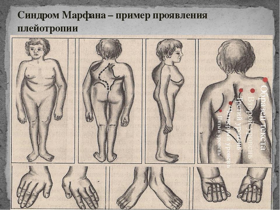Синдром Марфана – пример проявления плейотропии