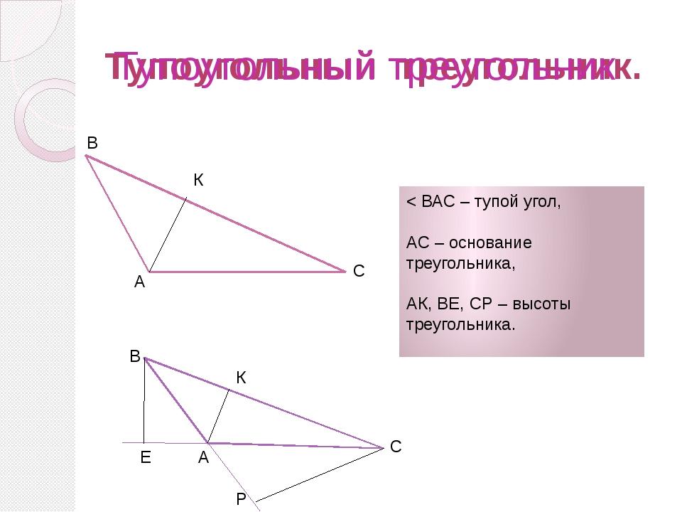 Тупоугольный треугольник. В А С К В А С Е Р < ВАС – тупой угол, АС – основани...