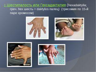 2. Шестипалость или Гексадактилия (hexadaktylia; греч. hex шесть + daktylos