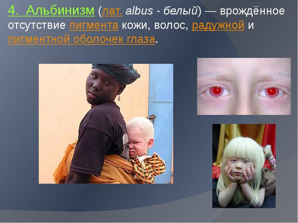 4. Альбинизм (лат.albus - белый)— врождённое отсутствие пигмента кожи, вол...