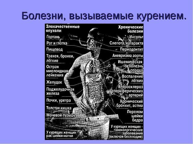 Болезни, вызываемые курением.