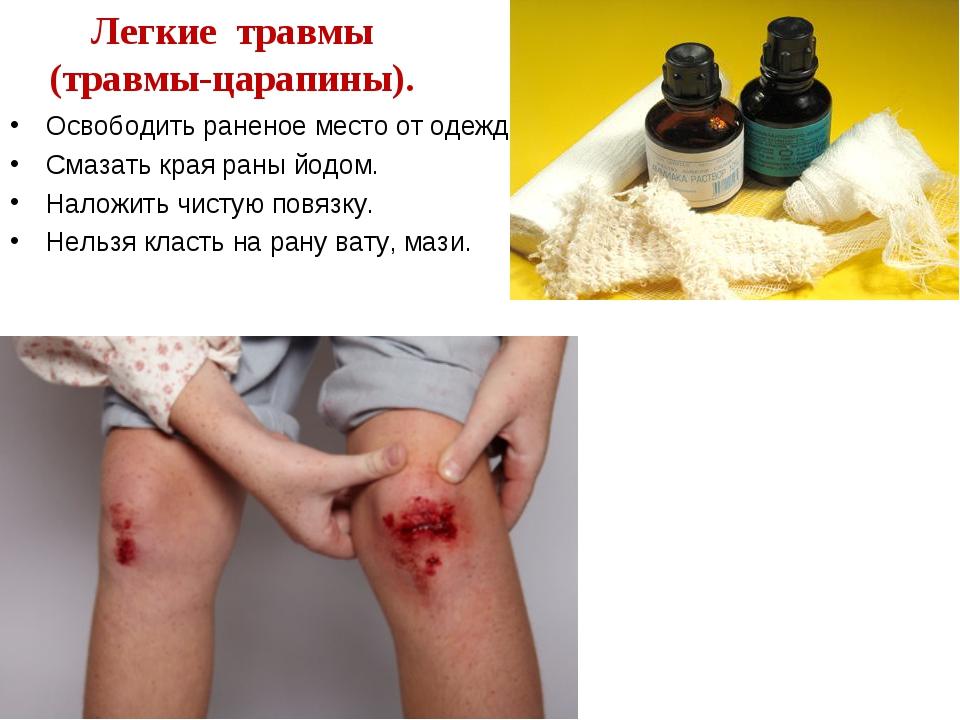 Легкие травмы (травмы-царапины). Освободить раненое место от одежды. Смазать...
