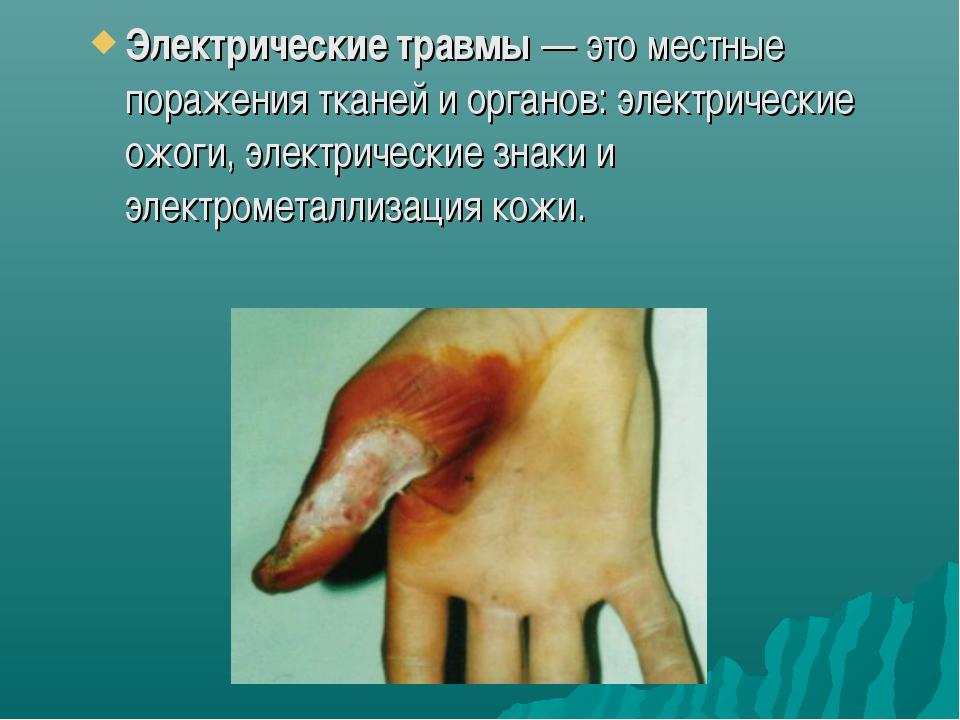 Электрические травмы— это местные поражения тканей и органов: электрические...