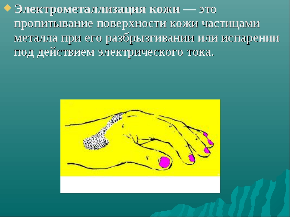 Электрометаллизация кожи— это пропитывание поверхности кожи частицами металл...