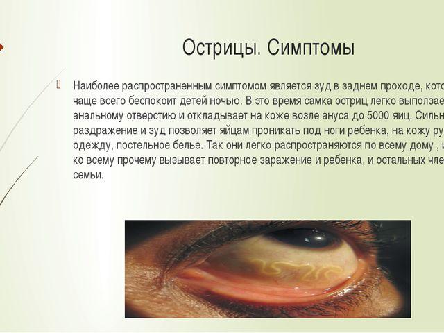 Острицы. Симптомы Наиболее распространенным симптомом является зуд в заднем п...