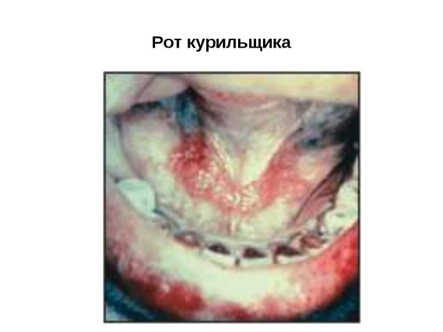 Рот курильщика