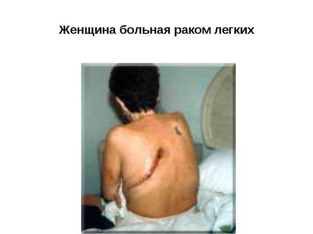 Женщина больная раком легких