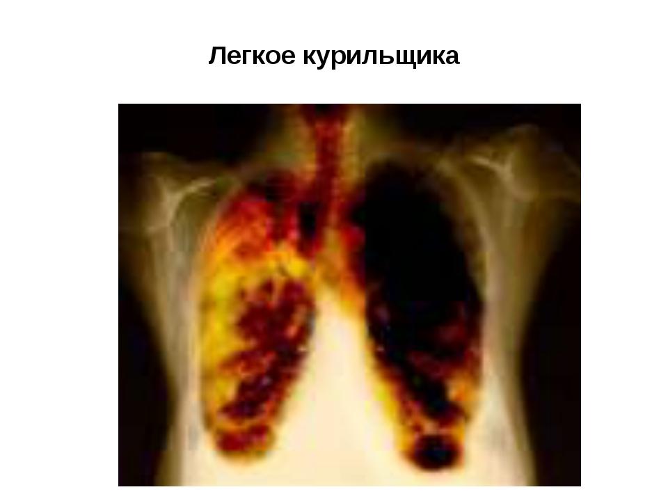 Легкое курильщика