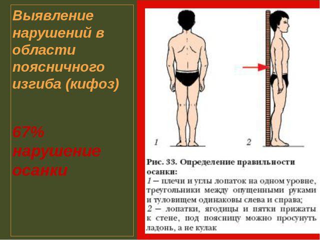 Выявление нарушений в области поясничного изгиба (кифоз) 67% нарушение осанки