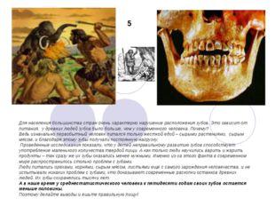 Для населения большинства стран очень характерно нарушение расположения зубов