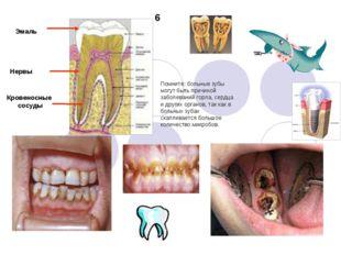 Помните: больные зубы могут быть причиной заболеваний горла, сердца и других