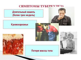 СИМПТОМЫ ТУБЕРКУЛЕЗА Длительный кашель (более трех недель) Кровохарканье Поте
