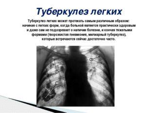 Туберкулез легких Туберкулез легких может протекать самым различным образом: