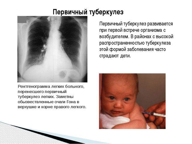 Первичный туберкулез Первичный туберкулез развивается при первой встрече орга...