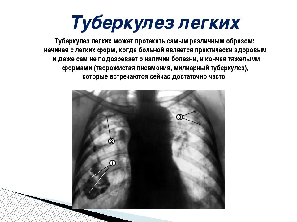 Туберкулез легких Туберкулез легких может протекать самым различным образом:...