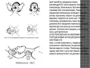 Щоб запобігти западанню язика, рекомецдуЮТЬ застосовувати спеціальні повітров