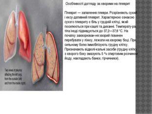 Особливості догляду за хворими на плеврит Плеврит — запалення плеври. Розріз