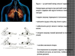 Ядуха — це раптовий напад сильної задишки. Невідкладна допомога при раптовій