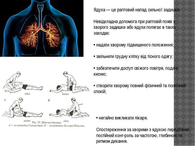 Ядуха — це раптовий напад сильної задишки. Невідкладна допомога при раптовій...
