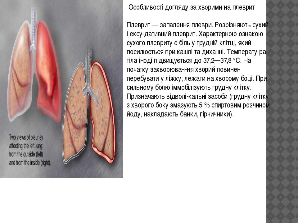 Особливості догляду за хворими на плеврит Плеврит — запалення плеври. Розріз...