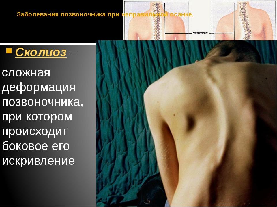 Заболевания позвоночника при неправильной осанке. Сколиоз – сложная деформаци...