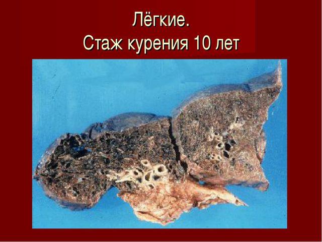 Лёгкие. Стаж курения 10 лет