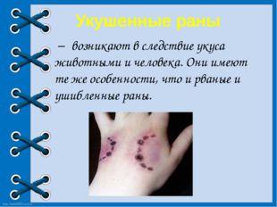 Укушенные раны – возникают в следствие укуса животными и человека. Они имею