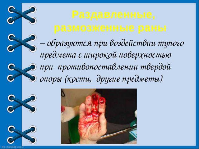 Раздавленные, размозженные раны – образуются при воздействии тупого предмета...