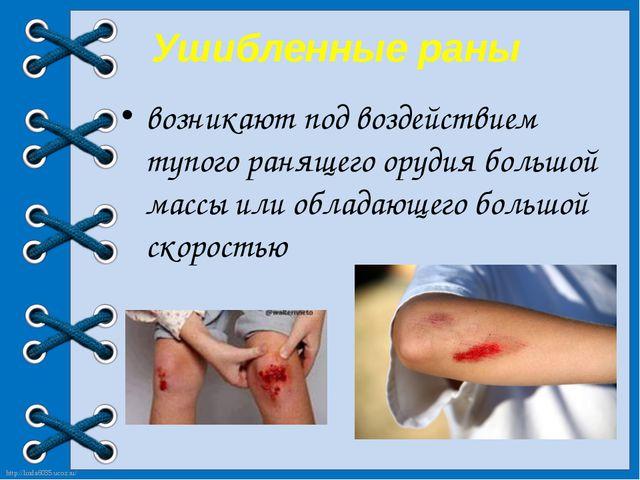Ушибленные раны возникают под воздействием тупого ранящего орудия большой ма...