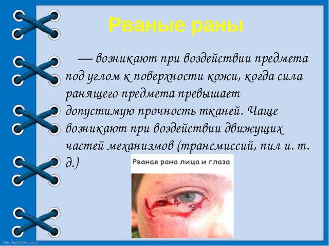 Рваные раны — возникают при воздействии предмета под углом к поверхности ко...