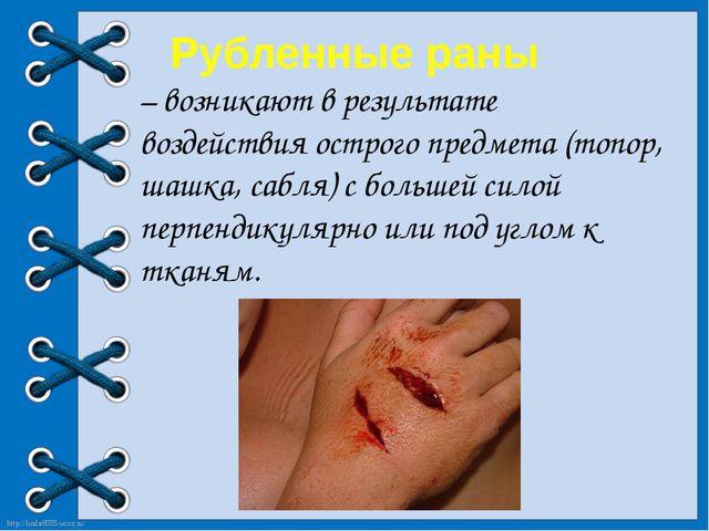 Рубленные раны – возникают в результате воздействия острого предмета (топор,...