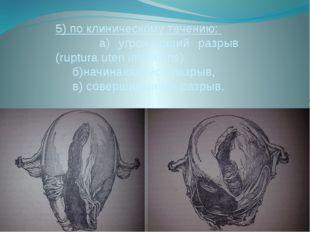5) по клиническому течению: а) угрожающий разрыв (ruptura uteri imminens) б)н