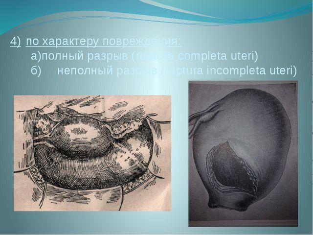 4)по характеру повреждения: а)полный разрыв (ruptura completa uteri) б)неп...