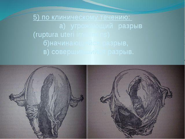 5) по клиническому течению: а) угрожающий разрыв (ruptura uteri imminens) б)н...