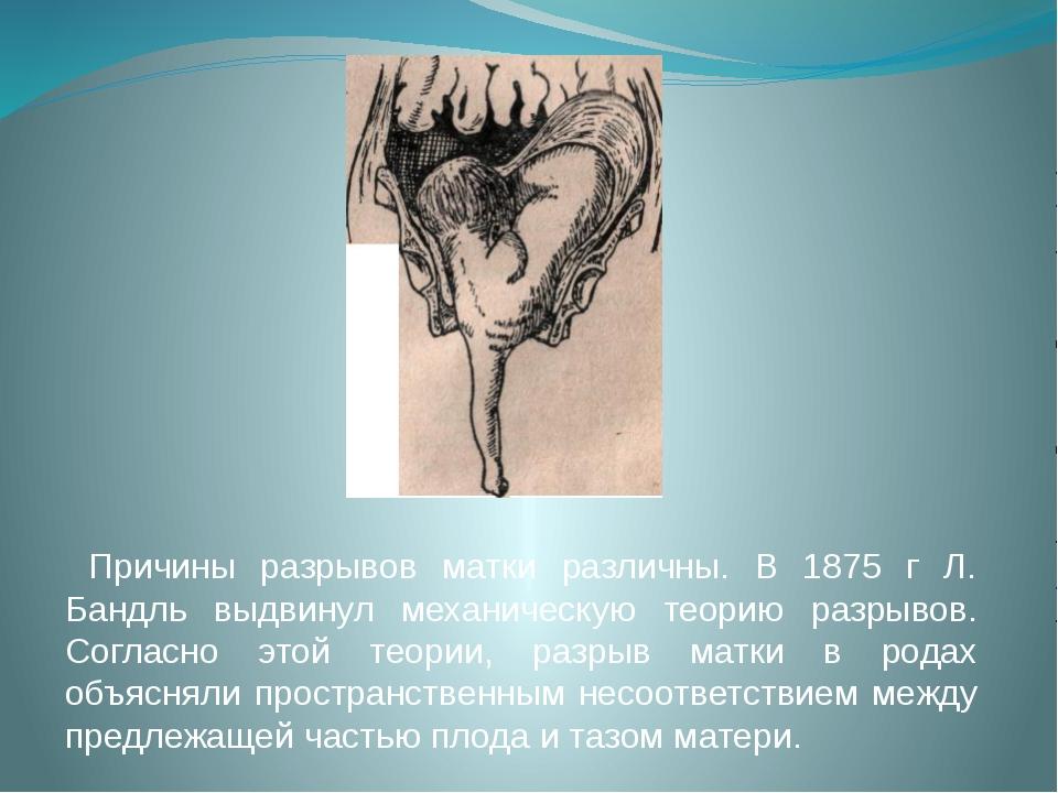 Причины разрывов матки различны. В 1875 г Л. Бандль выдвинул механическую те...