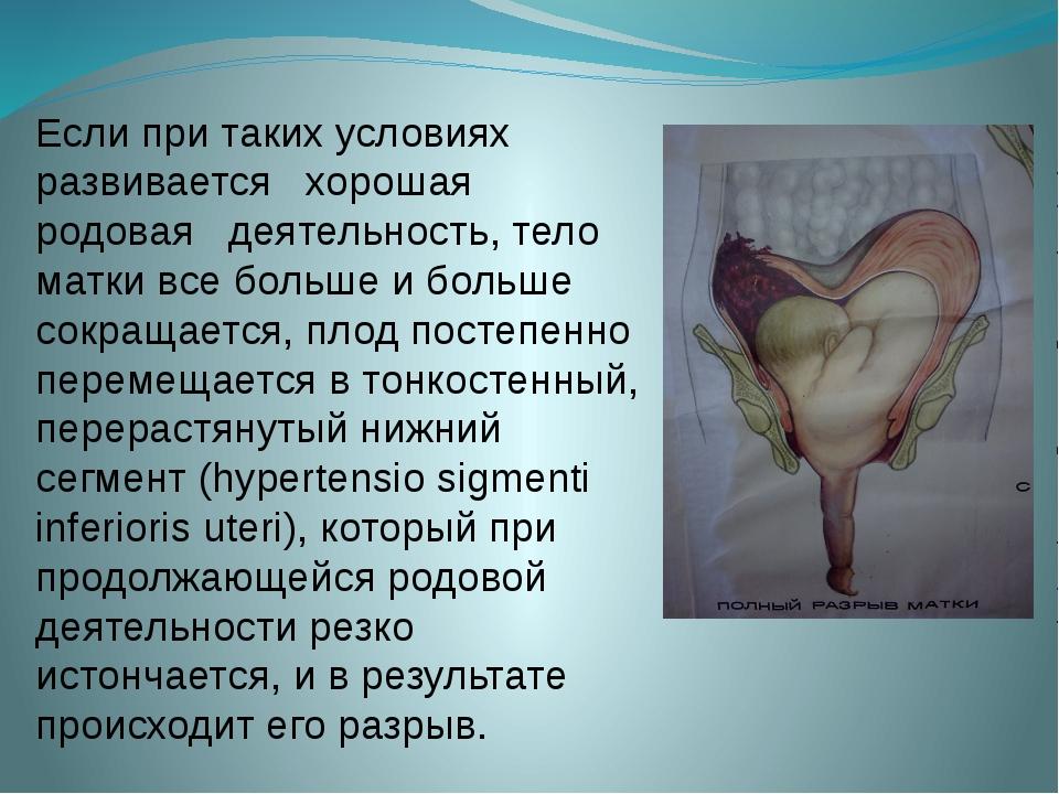 Если при таких условиях развивается хорошая родовая деятельность, тело матки...