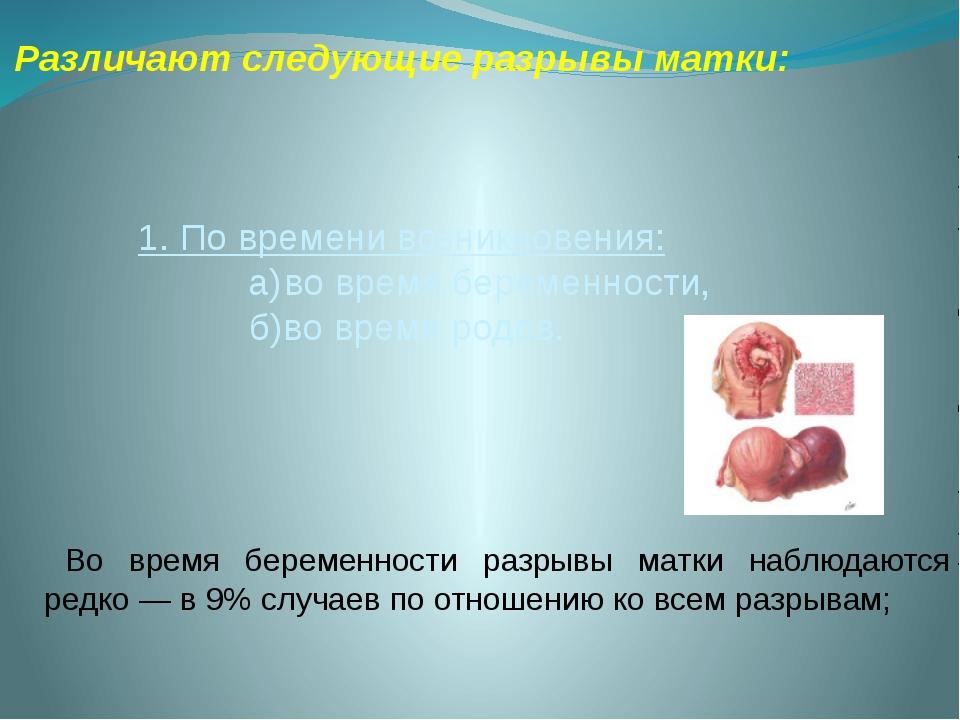 Различают следующие разрывы матки:  1. По времени возникновения: а)во время...
