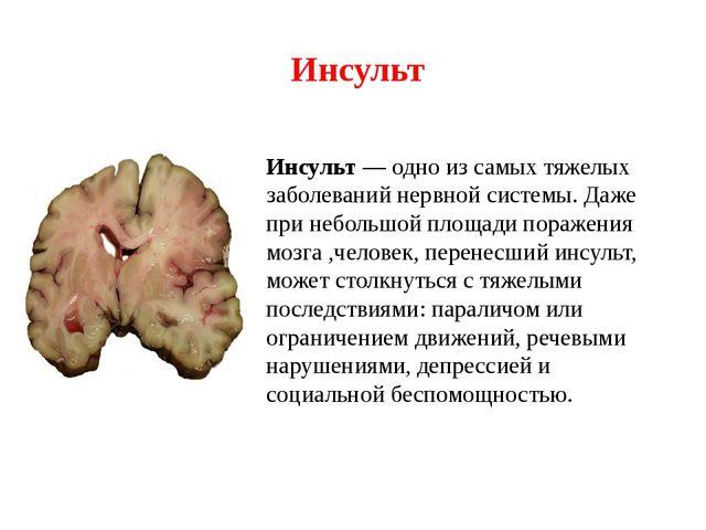 Инсульт— одно из самых тяжелых заболеваний нервной системы. Даже при небольш...