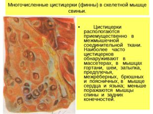 Многочисленные цистицерки (финны) в скелетной мышце свиньи. Цистицерки распо