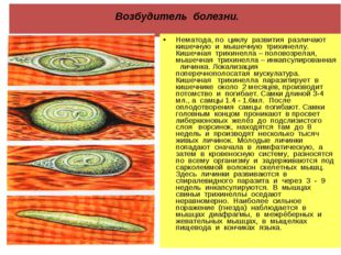 Возбудитель болезни. Нематода, по циклу развития различают кишечную и мышечн