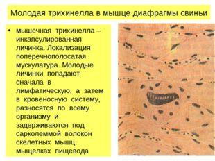 Молодая трихинелла в мышце диафрагмы свиньи мышечная трихинелла – инкапсулиро