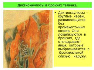 Диктиокаулюсы в бронхах теленка. Диктиокаулюсы – круглые черви, развивающиеся